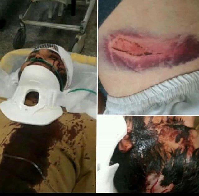 ماجرای حمله 6 جوان به 2 طلبه در بستنیفروشی/ عکس