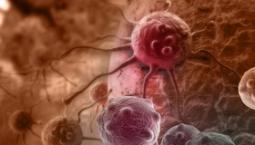 هزینه درمان سرطان چقدر است؟