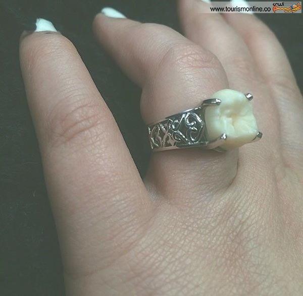49036 160 عجیبترین حلقه ازدواج دنیـا