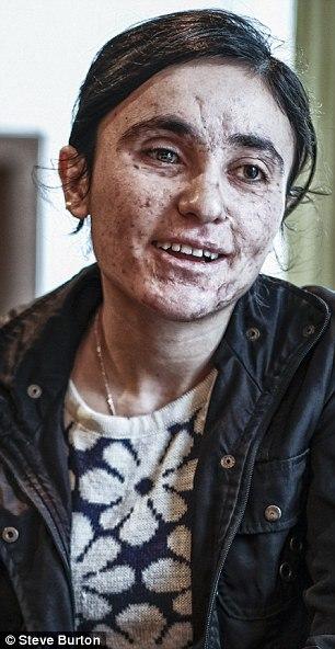 روایت دختر شجاع ایزدی که برای رهایی از چنگال داعشی ها زیبایی خود را منفجر کرد