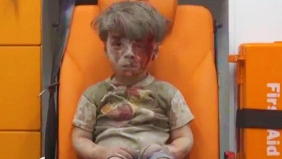 عمران کودک سوری اشک جهانیان را درآورد
