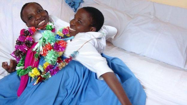 دو قلوهای به هم چسبیده تانزانیایی در ۲۲ سالگی درگذشتند+عکس