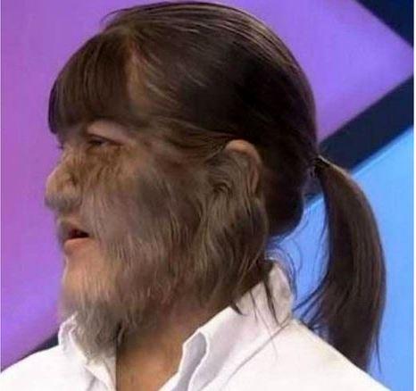 ازدواج باور نکردنی پرموترین دختر دنیا/ثبت رکورد گینسی به خاطر موهای زائد صورت +تصاویر