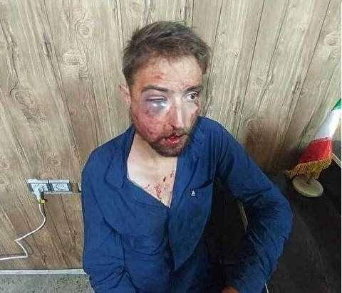 جزئیات تازه از ماجرای کتک زدن وحشیانه گردشگر آلمانی در ایران