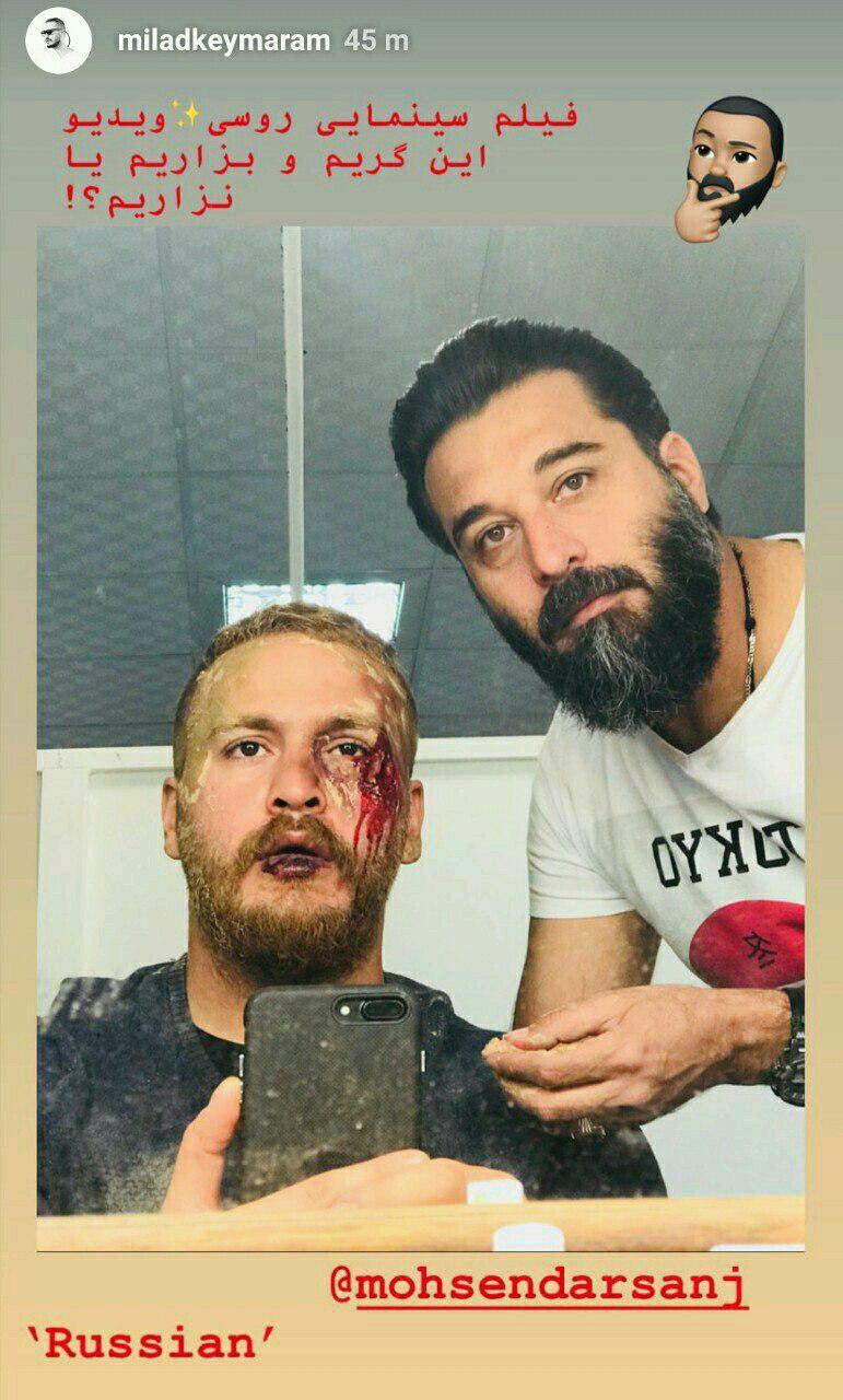 عکس| صورت غرق در خون بازیگر پرسروصدای سینما