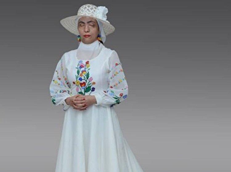 زنان قربانی اسیدپاشی مدل لباس شدند