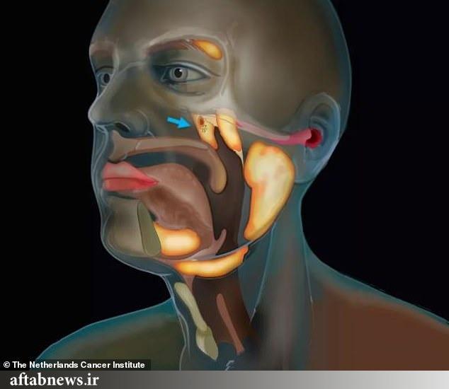 عکس| کشف اندام تازه در گلوی انسان